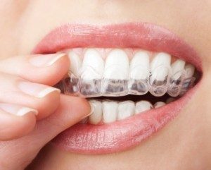 invisible braces invisalign pix