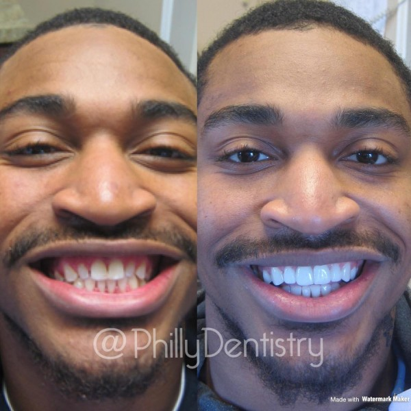 Smile Makeover Philadelphia | Smile Makeovers Restore Your