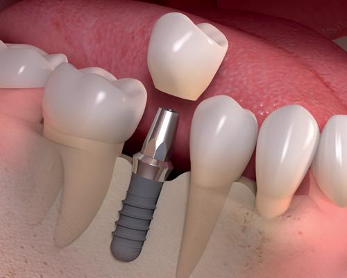 Kết quả hình ảnh cho Dental implants permanently teeth