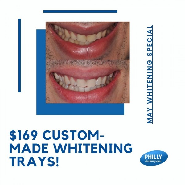 May whitening special