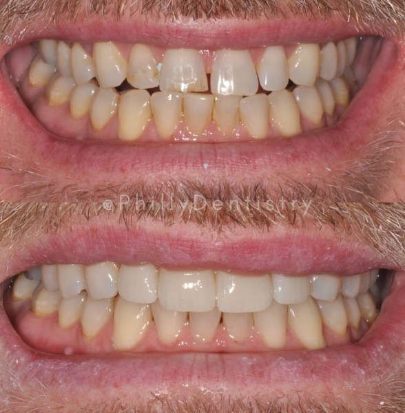 watermarked teeth USED