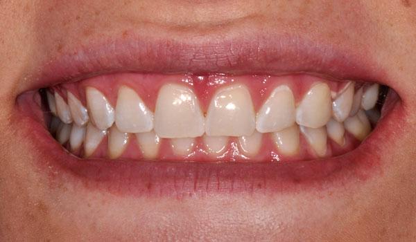 Caitlin L Smile After