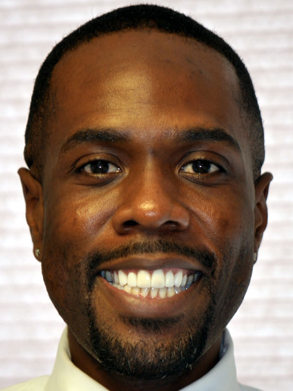 Maurice W Face After Whitening Veneers