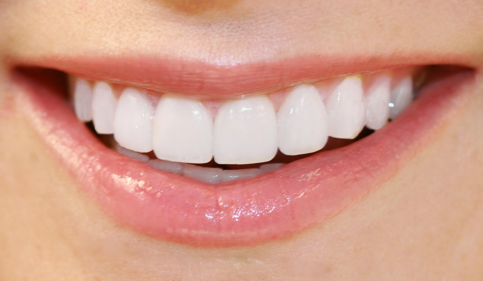 Natural Color Of Healthy Teeth