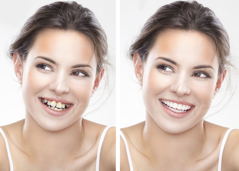 perfect smile veneers как плльзоватся
