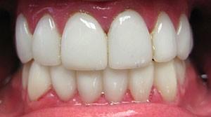 01A smile after veneers